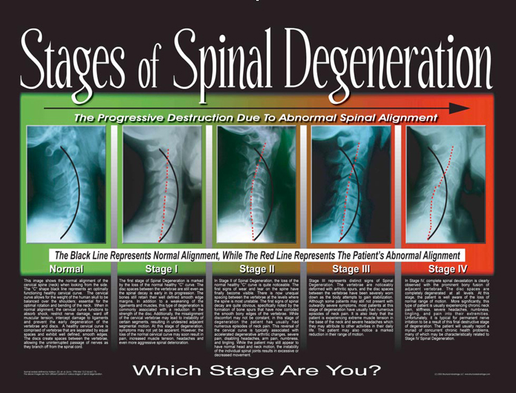 Stages of Spinal Degeneration in Auburn WA